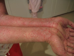 Could Noxzema be an Eczema Remedy?